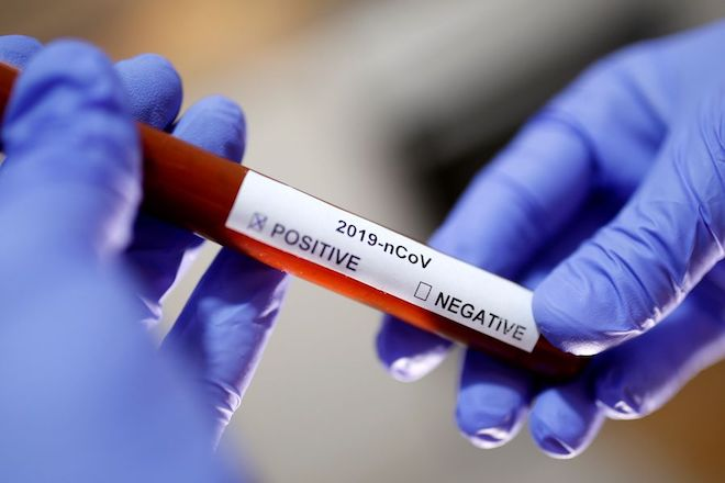 Seremi de Salud confirma once nuevos casos de covid-19 en la Región de Los Ríos
