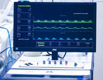 Ventilador mecánico ASMAR – UdeC supera pruebas clínicas y se alista para su fabricación