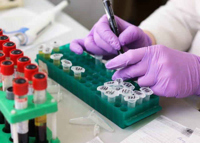 Test detectará en 20 minutos la tuberculosis en ganado vacuno